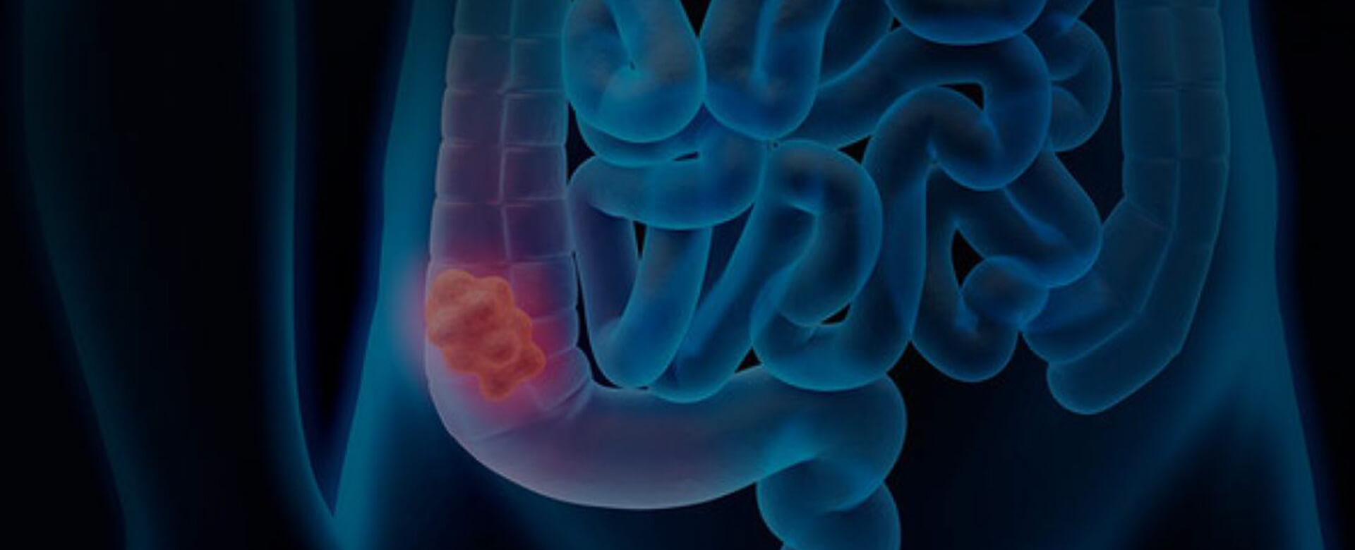 In the gut microbiota a new weapon against colon cancer