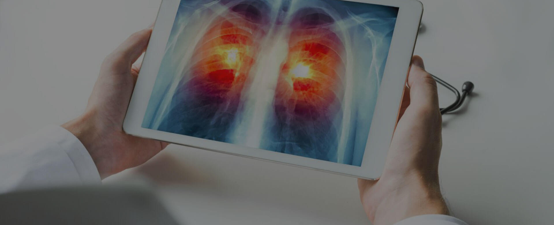 Lung cancer: smoke leaves traces in healthy cells